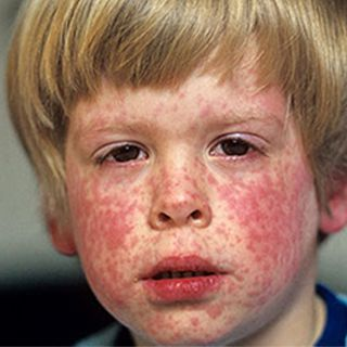 National Press Foundation link: Disease Outbreak: Measles and Vaccines