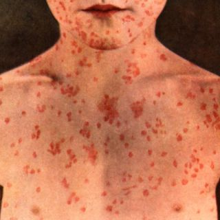 National Press Foundation link: What is Measles?